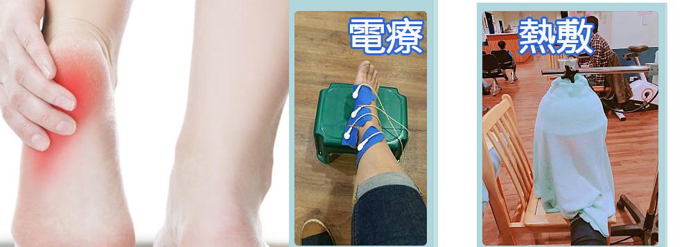 足底筋膜-熱敷